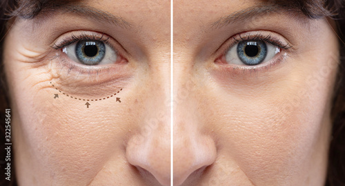 Photo Before and after a rejuvination treatment, wrinkles and crow's feet removal Line
