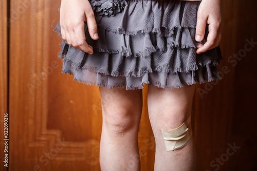Photo little girl hurt her knee