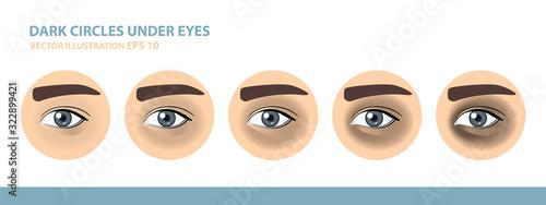Dark Circles Under Eyes. Male Eye. Vector Illustration Canvas Print