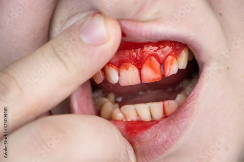 The man has blood on his teeth, severe bleeding of the gums after a blow to the jaw Canvas Print
