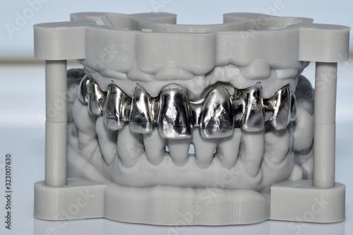 Fotografia, Obraz Upper metal dental prosthesis, made with cad cam