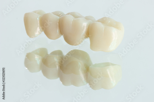 Fototapeta 4 units zirconia bridge with all porcelain with a reflection on the glass