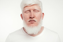 Freckled Albino Man With Closed Eyes