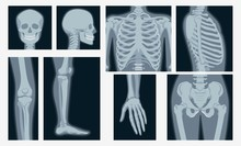 Different X-rays Shot Of Human Body Part Set Vector Flat Illustration. Cartoon Various X-ray Pictures Of Head, Hands, Legs, Torso Of Skeleton Character Isolated On White Background
