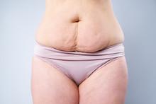 Tummy Tuck, Flabby Skin On A F...