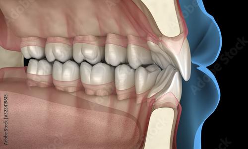 Cuadros en Lienzo Healthy human teeth with normal occlusion, 3D Illustration