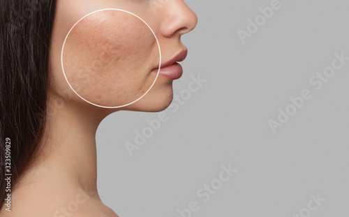 Photo before and after treatment for acne Canvas Print
