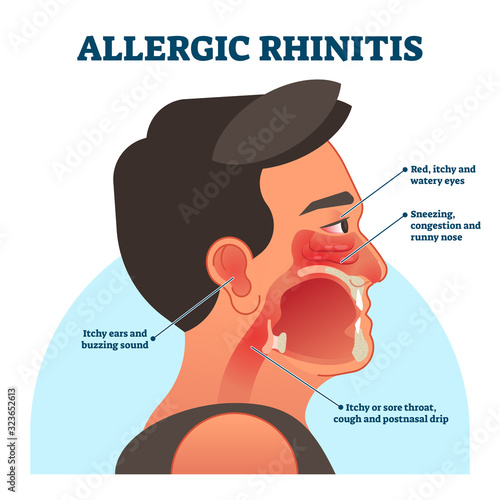 Allergic rhinitis medical diagram, vector illustration labeled information Wallpaper Mural