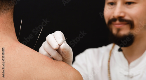Photo Asian acupuncturist doing acupuncture back to relieve man's shoulder pain