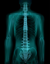 Spine X-Ray Realistic Image