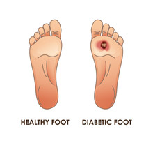 Diabetic And Healthy Foot. Vec...