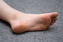 Foot Wart, Verrucas Plantar On The Foot Of A Child From Sweden. A  Decease Caused By The Human Pallomavirus And Often Spread At Communal Showers Or By Sharing Socks With Others.