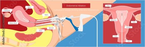 Photo Endometrial ablation surgical uterus procedure