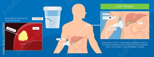 Fotografia, Obraz Liver scan biopsy diagnosis for cancer disease
