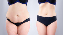 Woman's Belly Before And After...