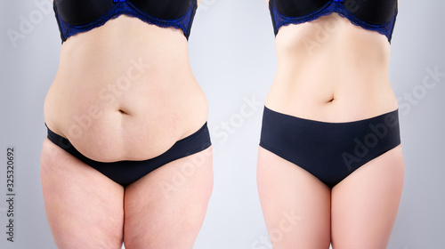 Valokuvatapetti Woman's belly before and after weight loss on gray background