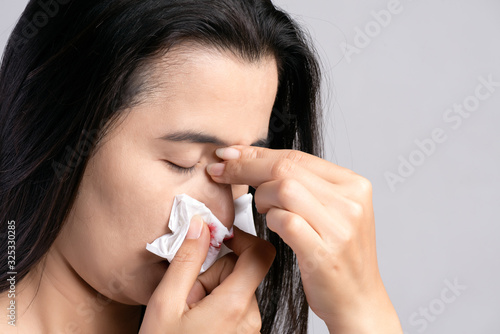 Cuadros en Lienzo Nosebleed , a young woman suffering from nose bleeding and using tissue paper for stop bleeding