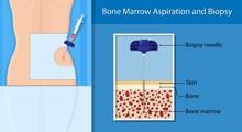 Bone Biopsy Medical Marrow Har...
