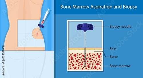 Photo Bone biopsy medical marrow harvest stem cell transplants aspiration specimen can