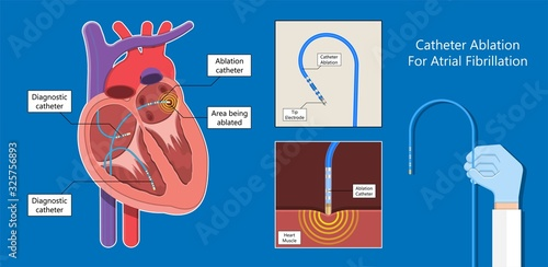 Cardiac catheter ablation Atrial fibrillation minimally invasive procedure rhyth Canvas Print