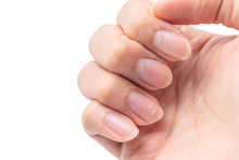 Close Up Long Fingernails And Dirty, Isolated On White Background With Clipping Path, Health Care Protection And Cleanliness Concept.