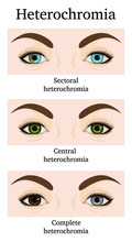 Illustration Of Three Types Of Heterochromia - Partial, Central And Complete