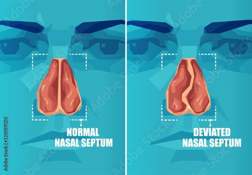 Photo Vector cross section of face with deviated and normal nasal septum