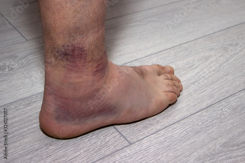 young man with sprained ankle on the floor. Canvas Print