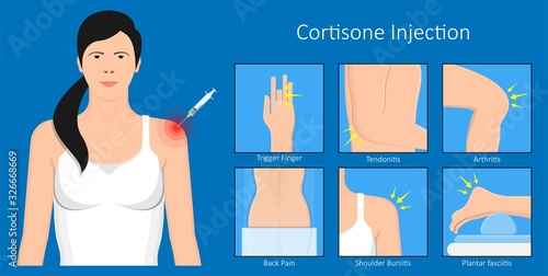 Fotografía Cortisone shots injection epidural steroid ESI lumbar back spinal nerves anti in