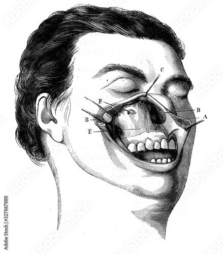Anterior surface of the maxilla, discovered by the simple upper lip incision in the old book D'Anatomie Chirurgicale, by B Wallpaper Mural