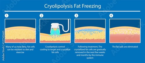 Canvas Print cryolipolysis fat freezing procedure cold treatment non invasive medication redu