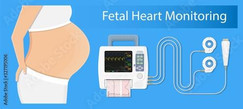Valokuvatapetti fetal monitor FHR exam signal sensor room beat labor CTG graph baby