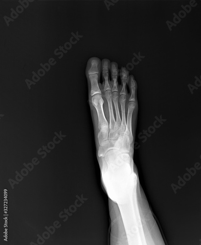 x-ray of the foot, diagnosis of fractures, arthritis, deforming arthrosis Canvas Print