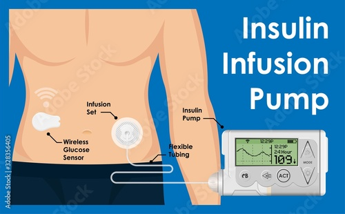 Insulin Infusion Pump on Patient Body Electronic Medical Digital Technology Devi Wallpaper Mural