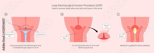 Fényképezés Cold knife cone biopsy Loop Electrosurgical Excision Procedure LEEP Large Loop E