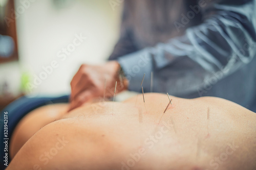 Photo man having acupuncture treatment .
