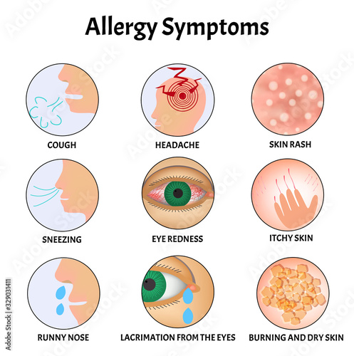 Symptoms of Allergies Skin rash, Allergic skin itching, Tearing from the eyes, Cough, Sneezing, Runny nose, Headache, Redness of the eyes Wallpaper Mural