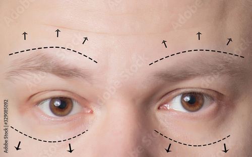 Photo Plastic surgery of eyebrows in men, lower and upper eyelids