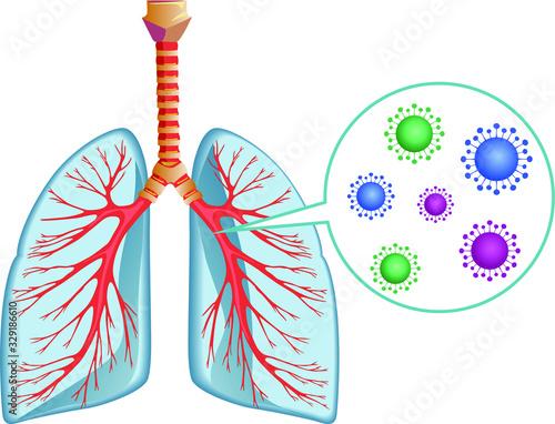 Ilustración vectorial sobre fondo blanco. Pulmones y virus Canvas Print