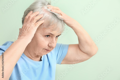 Cuadros en Lienzo Senior woman with hair loss problem on color background