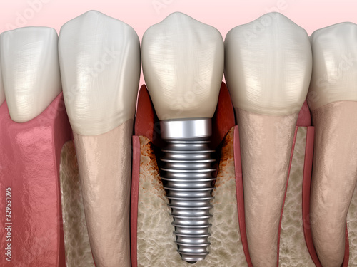 Periimplantitis with visible bone damage. Medically accurate 3D illustration of dental implants concept #329531095