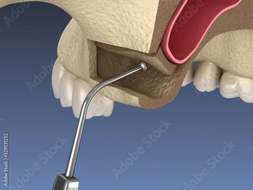 Obraz Sinus Lift Surgery - Moving sinus membrane. 3D illustration - fototapety do salonu
