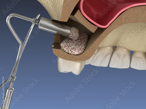 Valokuva Sinus Lift Surgery - Adding new bone. 3D illustration