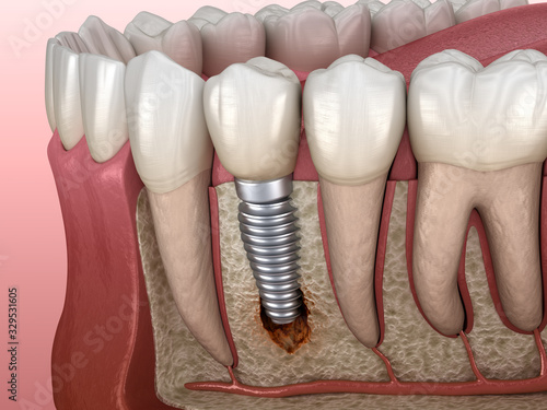 Periimplantitis with visible bone damage. Medically accurate 3D illustration of dental implants concept #329531605
