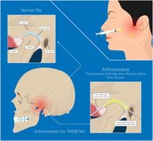 Temporomandibular Joint Disord...