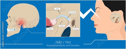 Valokuvatapetti Temporomandibular Joint Disorders TMD TMJ treat pain displaced disc temporal bon