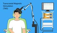 Transcranial Magnetic Stimulat...