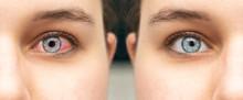 Comparison Closeup View Of Eye...