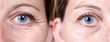 Leinwandbild Motiv Collage comparison before and after beauty care. Closeup view of aged women eyes. ..
