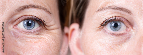 Collage comparison before and after beauty care. Closeup view of aged women eyes. ..